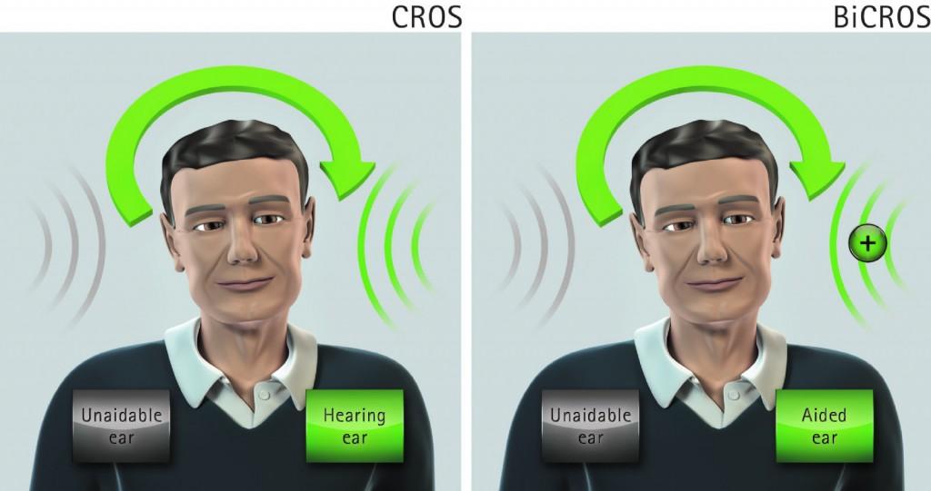 cros1